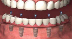 Fixed-Denture