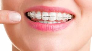 caramic-braces