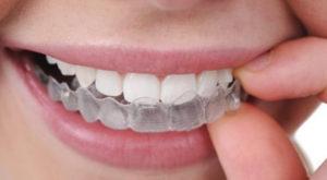 invisible-braces